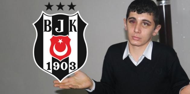 Beşiktaş, Adana'da Saldırıya Uğrayan İşitme Engelli Genci Maça Davet Etti