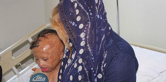Hakkari'de yüzü ve kafası yanan 7 yaşındaki çocuk İstanbul'da ameliyat edildi
