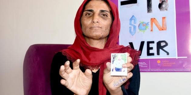 Kocası elektrikle işkence yaptı, 11 parmağı kesildi!