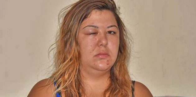 Tanışma isteğini reddeden kadın erkeklerin saldırısına uğradı